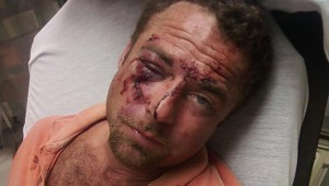 Aaron Parrish Beaten Police
